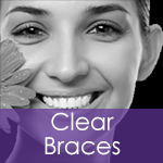Dentist in Manchester offering Clear Braces